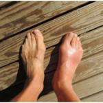足の指が痛い、腫れと痛みの原因は?
