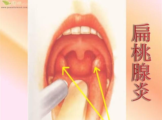 風邪で喉が腫れた!扁桃腺とリンパ腺の違いは?他の病気の疑いは