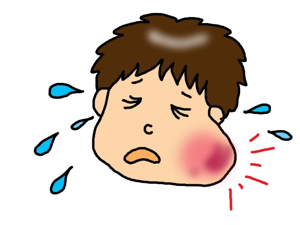 扁桃腺炎 症状 咳
